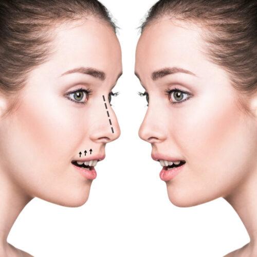 Chirurgie du nez Rhinoplastie